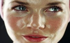 come prendersi cura della pelle grassa anteprima