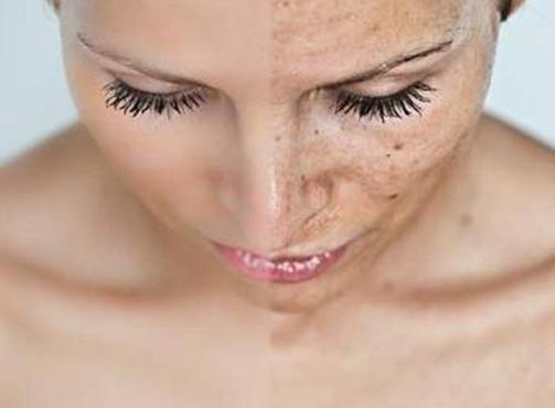 come prendersi cura della pelle mista