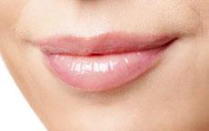 labbra-chirurgia-estetica